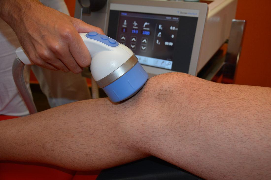 Tratamiento de la tendinopatía rotuliana en Clínica Luis Baños