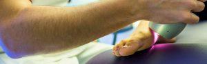 Tratamiento de la metatarsalgia en la clínica Luis Baños