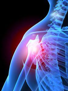 Tratamiento de hidrodilatación en hombro en Clínica Luis Baños de Jaén