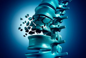 Osteoporosis - Clínica Luis Baños