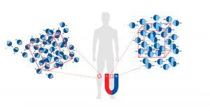 Resonancia Magnética en el tratamiento de la artrosis