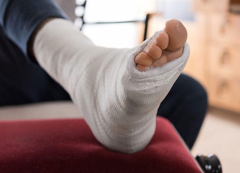 Tratamiento tras fractura en Clínica Luis Baños de Jaén